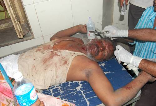 Pic 03 Bhikchand Salve recuperating after attack from the Hindu upper caste Goons