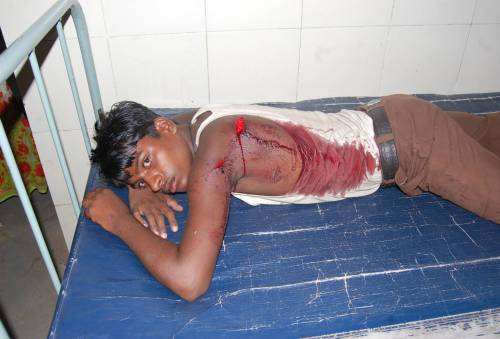 Pic 02 : Even Minors not spared, Praveen lying in Hospital with deep cut on back, bleeding