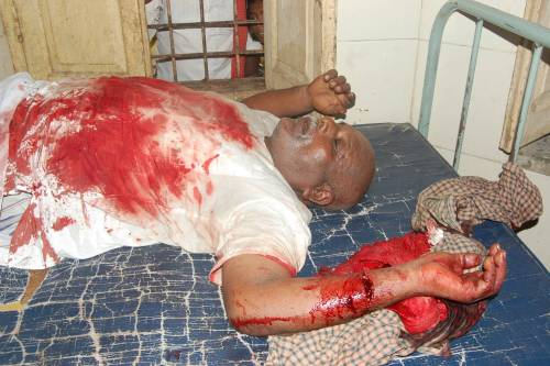 Pic 01: The lovable Ex-teacher and Guide, Mr Sadashiv Salve, lying dead in pool of blood in the hospital