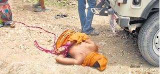 Pic01: Women lying unconscious after being bitten nearly to death and thrown urine